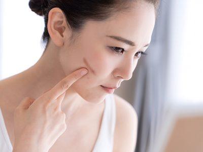 Cara menghilangkan bekas luka dalam 1 hari dengan skincare